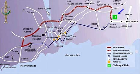 The map of Galway